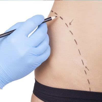 Pre y post operatorio de cirugía plástica