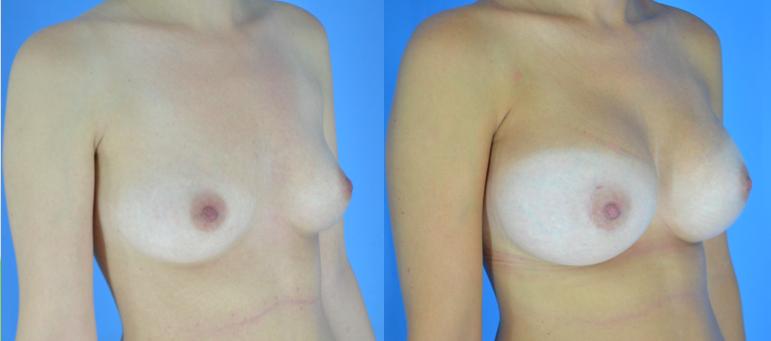 Mamoplastia 2